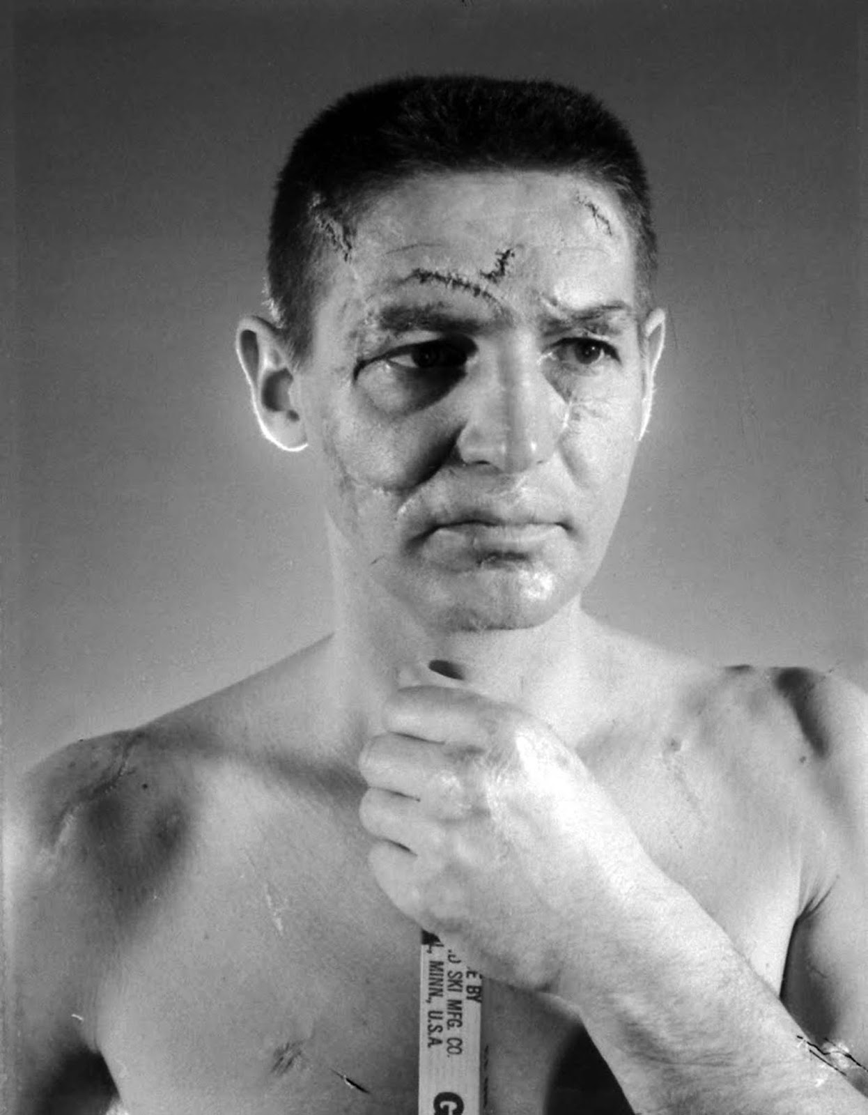 Terry Sawchuk - The face of a hockey goalie before masks became ...